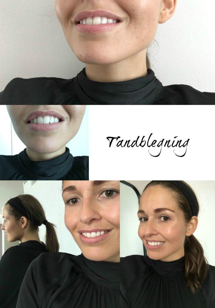 Tandblegning København