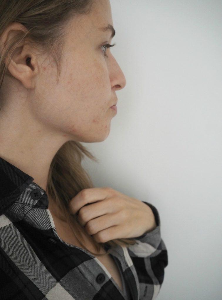 Jeg har taget udfordringen op mod slem graviditetshud 7