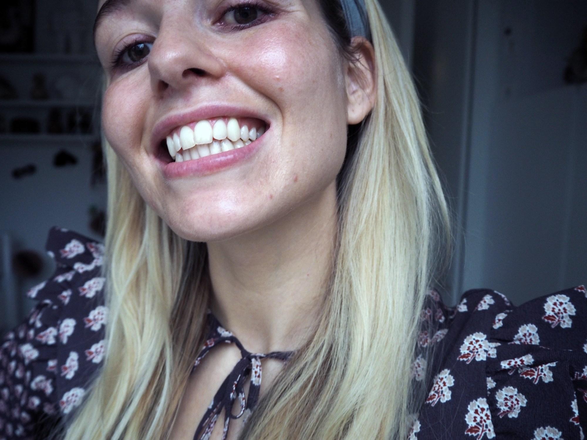 Tandblegning